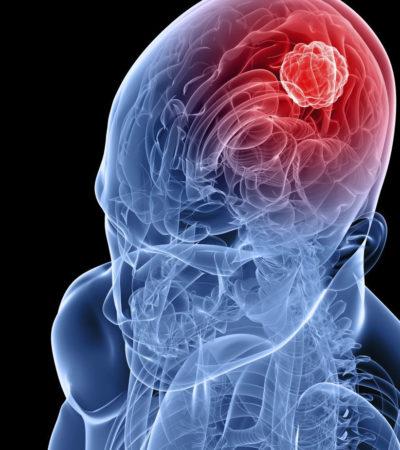 Você sabe como tratar o tumor cerebral?