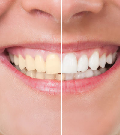 Dicas para manter e restaurar o esmalte dos dentes
