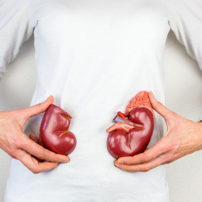 Entenda por que o calor pode ajudar no aumento dos casos de cálculo renal